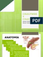 colelitiasisycolecistitise