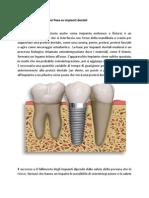 protesi fisse su impianti dentali