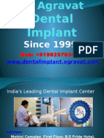 Dental Implants Ahmedabad India Affordable Best low costDental Implants India | teeth implants Ahmedabad India | tooth Implants India | Dental Implants Hospital in Ahmedabad, India | Dr.Agravat Dental Implant Clinic::