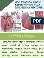 KELOMPOK 3 ASKEP ANGGINA PECTORIS .pptx