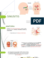 Sinusitis patologia