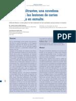 REsinas Infiltrantes, Una Novedosa Opción Para Las Lesiones de Caries No Cavitadas en Esmalte