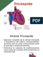 Atresia Tricúspide Arnaldodef