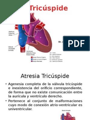 agenesia y atresia