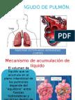 Edema Agudo Pulmonar