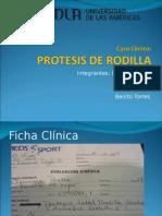 Caso Clinico Protesis