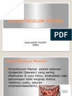 Divertikulum Meckel Ajeng