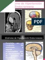 Sindrome de Hipertension Endocraneal