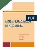 Abordaje supraclavicular del plexo braquialx.pdf