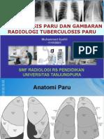 Gambaran Radiologi TB Paru