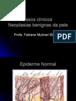 Neoplasias benignas