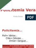 Aula Policitemia Vera.pptx
