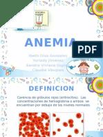 Alteraciones Hematopoyeticas Anemia, Hemofilia
