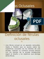 Férulas Oclusales (1)