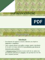 Toracocentese