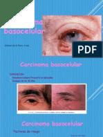 carcinma basocelular oftalmo