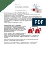 Cómo Se Puede Prevenir El Asma