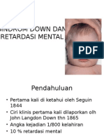 Sindrom Down Dan Retardasi Mental