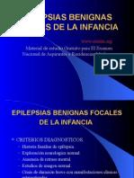 26757970 Epilepsias Benignas Focales de La Infancia