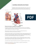 Cateterismo Cardíaco Derecho de Swan