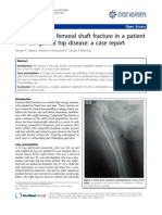 Case Control Femoral Shaft