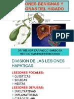 4. COLANGIOCARCINOMA-hepatoca