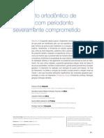 Tratamento ortodôntico de paciente com periodonto severamente comprometido