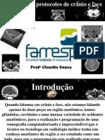 1-Protocolos PROTOCOLOS TC CRANIO E FACE.Tc Cranio e Face