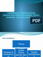 Gambaran Pemeriksaan Radiologi Pada Kelenjar Timus Normal Dan