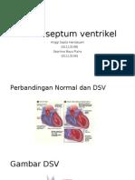 Defek Septum Ventrikel