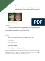 Sindrom Deformitas Janin
