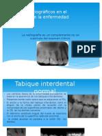Auxiliares Radiográficos en El Diagnostico de La Enfermedadperiodontal