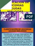 LMA clasificacion de leucemias mieloides agudas