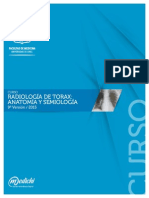 PDF Radiolog�a de Torax mod. 3.pdf