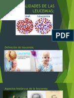 Generalidades de Las Leucemias