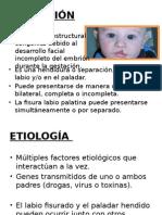 EXPOSICION FISURA LABIO PALATINO.pptx