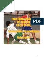 Luxacion Fractura de Tobillo en Futbol