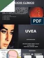 Patologías de la Uvea