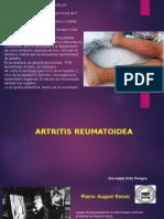 Artritis Reumatoidea.ii