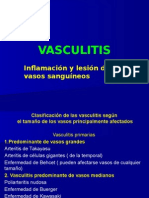 Vasculitis PowerNUEVO