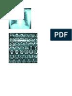 Ct-scan Dan Fo Thora