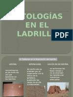 Patologia en El Ladrillo