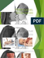 Características Físicas Del Recién Nacido