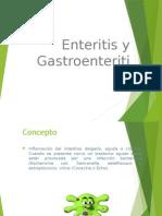 Enteritis y Gastroenteritis