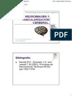 Vascularización Cerebral