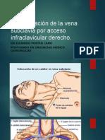 Cateterizaciòn de La Vena Subclavia Por Acceso Infraclavicular