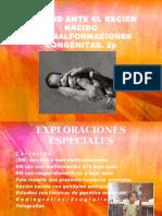 ACTITUD ANTE EL RECIÉN NACIDO.ppt