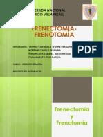 Frenectomía y FrenotomíaEXPOO