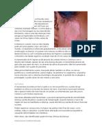 Hanseníase - Micro Oral