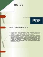 Fractura de Rotula
